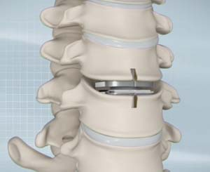 Artificial Cervical Disk Replacement
