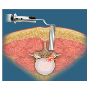 Lumbar Endoscopic Diskectomy