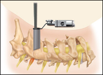 Cervical Foraminotomy, Houston TX